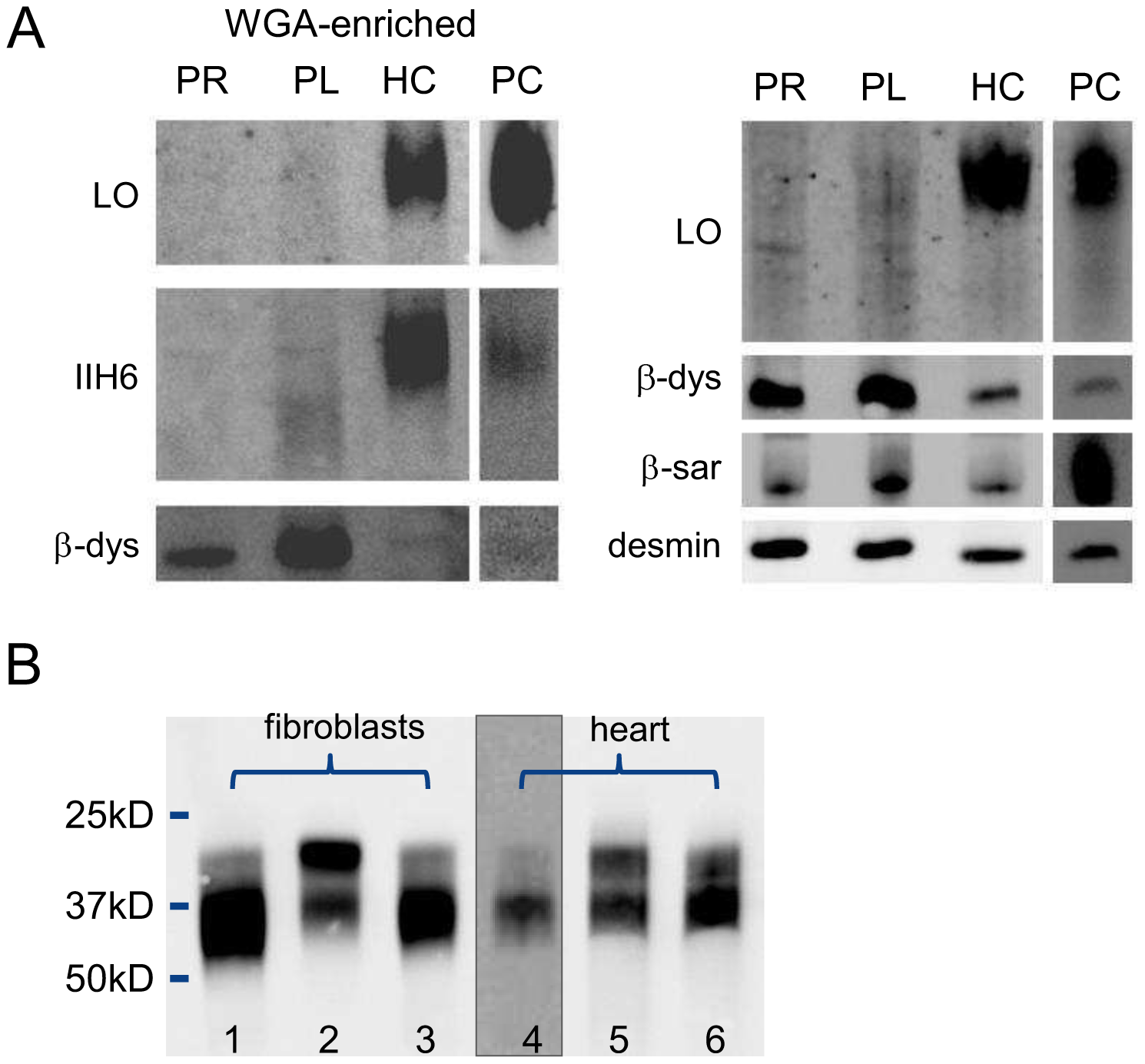 Western blotting for analysis of O-mannosylation and N-glycosylation.