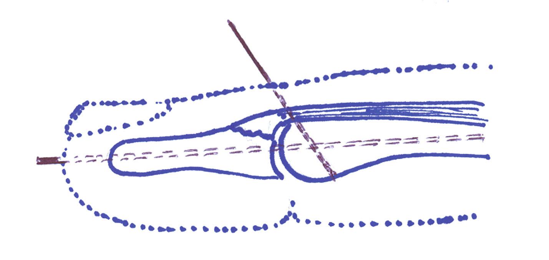 Technika extenčního bloku. Při plné flexi v distálním interfalangeálním článku je nejprve zaveden perkutánně Kirschnerův drát přes koncovou část dorzální aponeurózy do středního článku. Následně je provedena dorzální distálního článku a přes apex prstu je zaveden druhý Kirschnerův drát do článku středního.