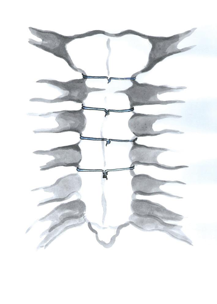 Technika uzávěru sternotomie jednotlivými peristernálními dráty (Kresba archiv autora) Fig. 2: Single peristernal wire cerclage
