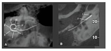 CBCT použité pro ověření polohy kochleárního implantátu (Cochlear Nucleus Freedom s kontaktními body v 22kanálové elektrodě).