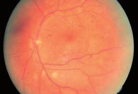 Obr. 2. Ľavé oko – po terapii anti-VEGF (3 aplikácie) a PRP (júl 2012 a október 2012)