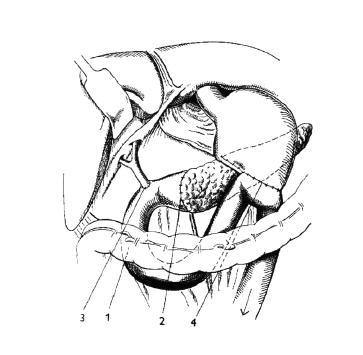 Duodenohemipankreatektómia podľa Whippla 1 – kľučka tenkého čreva, 2 – pankreatojejuno – anastomóza, 3 – choledochojejunoanastomóza šitá 20 cm od pankreatojejunoanastomózy, 4 – gastroenteroanastomóza, modifikované podľa Manna (52)
