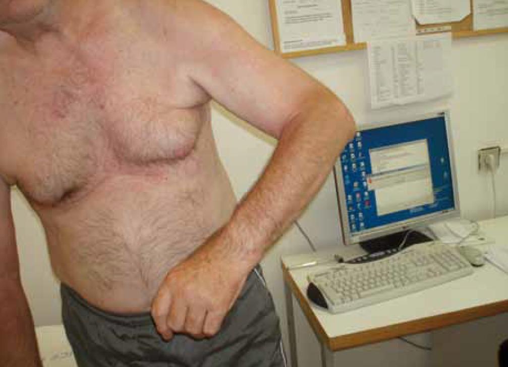 Obr. 7. Asociovaná reakce – zvyšující se abdukce levé paže při stoji a chůzi u 66letého muže jeden rok po ischemické CMP v řečišti a. cerebri media vpravo se středně výraznou levostrannou hemiparézou.