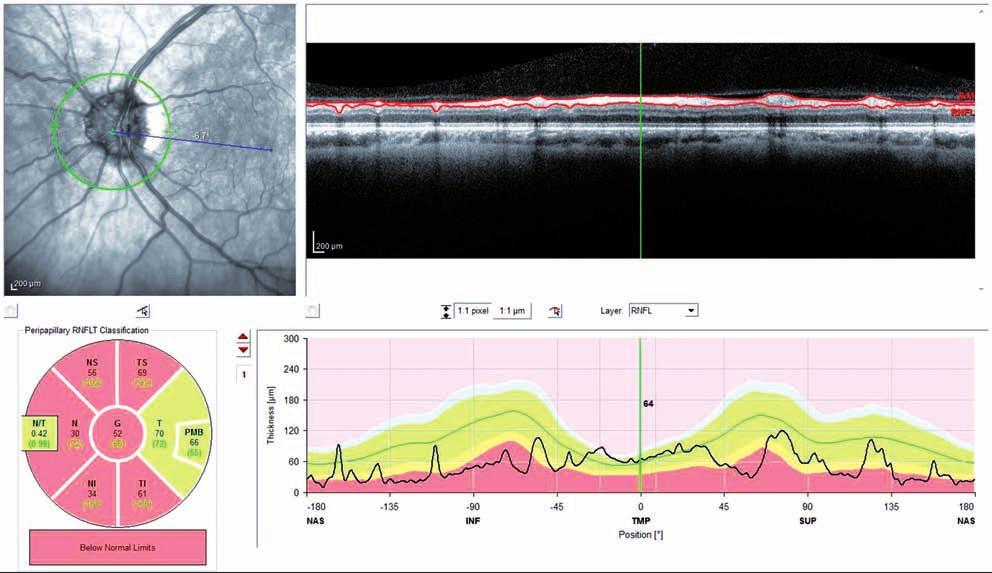 OCT RNFL (OCT Spectralis) ľavé oko (pacient č. 1) Pozitívny nález v hornej, nazálnej aj temporálnej časti.