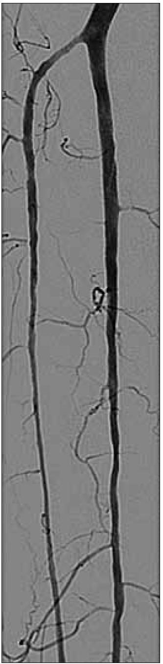 Obr. 6e. Nakonec zprůchodněny dvě bércové tepny pomocí aspirační trombektomie a končetina zachráněna.