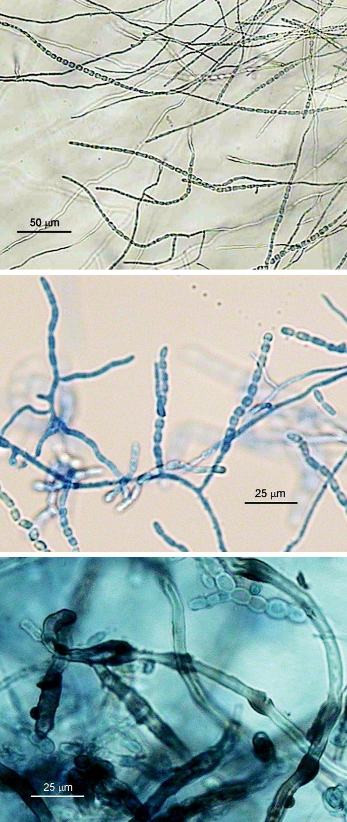 """a, b, c. Onychocola canadensis, mikroskopická morfológia; a) hýfy a dlhé retiazky súdkovitých artrokonídií (mikrokultúra, vodný agar, 10 dní, 25 °C), b) dtto, 2-3-týždňová kultúra, preparát v laktofenole s metylovou modrou, c) retiazky 1- a 2-bunkových artrokonídií a hnedé """"nodózne"""" hýfy (preparát v laktofenole zo starej kultúry na SAB agare) (foto A.V.) Fig. 4 a, b, c. Onychocola canadensis, micromorphology; a) hyphae and long chains of barrel-shaped arthroconidia (microculture, aqueous agar, 10 days, 25 °C), b) see a), 2-3-week culture, methylene blue-lactophenol mount, c) chains of single- and double-cell arthroconidia and brown nodular hyphae (lactophenol mount from previous Sabouraud agar culture) (photo A.V.)"""