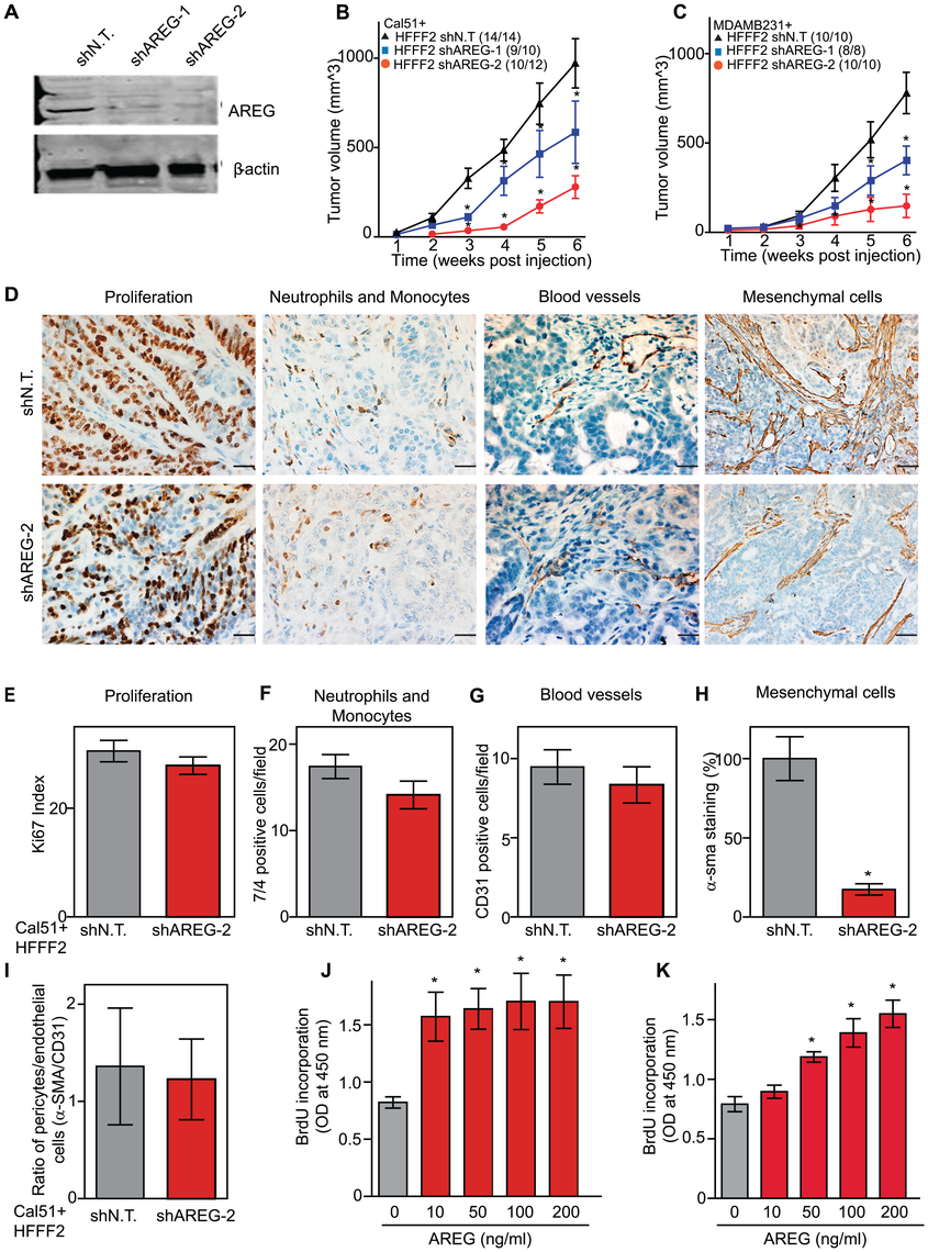Suppressing amphiregulin expression in tumor-supportive fibroblasts reduces tumorigenicity and amount of mesenchymal cells.