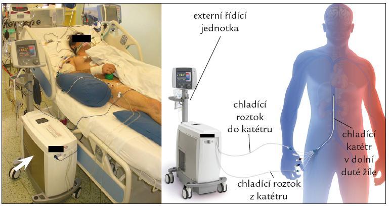 Endovaskulární katetrový ochlazovací systém CoolGard 3000<sup>TM</sup> a Icy femoral cathether<sup>TM</sup>, Alsius Corp., Irvine, USA.