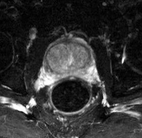Benigní hyperplazie prostaty, uzlivoté zbytnění centrální zóny, axiální řez.