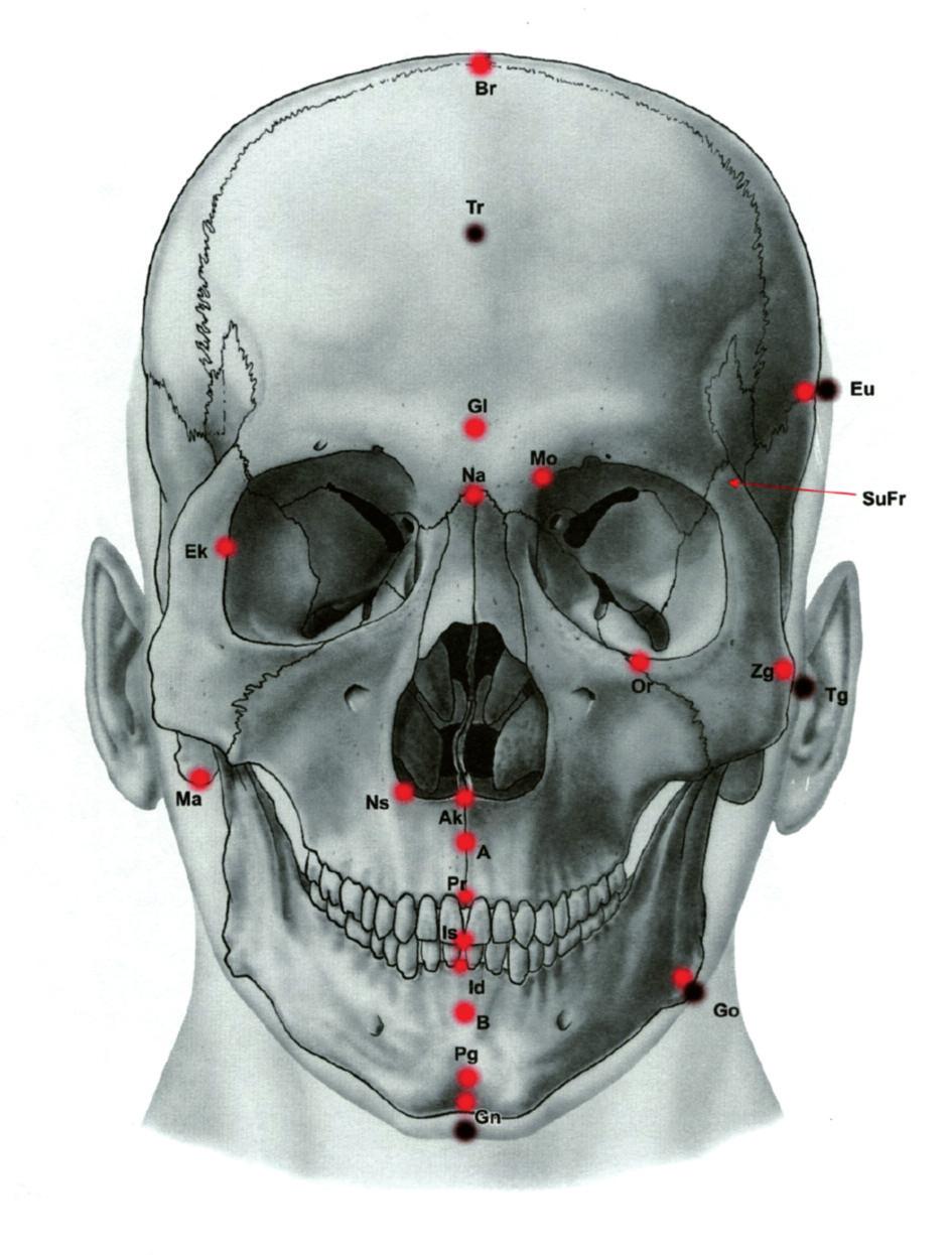 Ukázka antropometrických bodů – frontální pohled na lebku. Většina z nich se stala základem konstrukce kefalometrických analýz. (Převzato z knihy Klinická anatomie pro stomatology, Ivo Klepáček, Jiří Mazánek a kolektiv, Grada, Avicenum, 2001.) Br-bregma, Tr-trichion, Gl-glabella, Na-nasion, Momedioorbitale, Eu-Euryon, SuFr-sutura frontozygomatica, Ek-ektokonchion,Or-orbitale, Zg-zygion,Tg-tragion, Ns-nasospinale, Ma-mastoideale, Ak-akanthion, A-bod A, B-bod B, Pr-prosthion, Is-incisale superius, Id-infradentale, Pg-pogonion, Gn-gnathion, Go-gonion, Opopisthocranion, Po-porion,Ar-articulare, Ge-genion, Lilabrale inferius, Ls-labrale superius, Sto-stomion, Sn-subnasale.