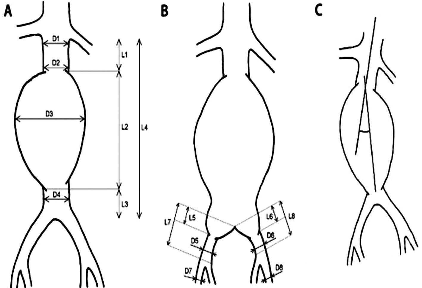 """Schéma spôsobu merania vybraných parametrov infrarenálnej aorty s výduťou a iliakálneho riečiska A,B: D1 – priemer aorty (proximálneho krčka aneuryzmy) tesne pod odstupom distálne uloženej renálnej tepny, D2 – priemer aorty (proximálneho krčka aneuryzmy) tesne nad aneuryzmou, D3 – priemer aneuryzmy, D4 – priemer aorty (distálneho krčka, pokiaľ je prítomný) pod aneuryzmou, D5 – priemer """"zdravého úseku"""" AIC (arteria iliaca communis) pod aneuryzmou vpravo, D6 – priemer """"zdravého úseku"""" AIC pod aneuryzmou vľavo, D7 – priemer AIE (arteria iliaca externa) vpravo, D8 – priemer AIE vľavo, L1 – dĺžka proximálneho krčka aneuryzmy, L2 – dĺžka výdute, L3 – dĺžka distálneho krčka aneuryzmy (pokiaľ je prítomný), L4 – celková dĺžka subrenálnej aorty, L5 – dĺžka aneuryzmy postihnutého úseku AIC vpravo, L6 – dĺžka aneuryzmy postihnutého úseku AIC vľavo, L7 – dĺžka AIC vpravo, L8 – dĺžka AIC vľavo. C: uhol medzi pozdĺžnou osou proximálneho krčka a pozdĺžnou osou aneuryzmy. Fig. 1: Diagram of the measurement method for selected parameters of infrarenal aortic aneurysm and iliac arteries A,B: D1 – aortic diameter (proximal aneurysm neck) just below the origin of distally located renal artery, D2 – aortic diameter (proximal aneurysm neck) just above the aneurysm, D3 – diameter of the aneurysm, D4 – aortic diameter (distal neck, if present) below the aneurysm, D5 – diameter of the """"healthy segment"""" of AIC (common iliac artery) under the aneurysm on the right side, D6 – diameter of the """"healthy segment"""" of AIC below the aneurysm on the left side, D7 – diameter of AIE (external iliac artery) on the right, D8 – diameter of AIE on the left, L1 – the length of the proximal neck of the aneurysm, L2 – the length of the aneurysm, L3 – the length of the distal neck of the aneurysm (if present), L4 – the total length of the infrarenal aorta, L5 – the length of the affected segment of the right AIC, L6 – the length of the affected segment of the left AIC, L7 – the length of the right AIC, L8 – the """