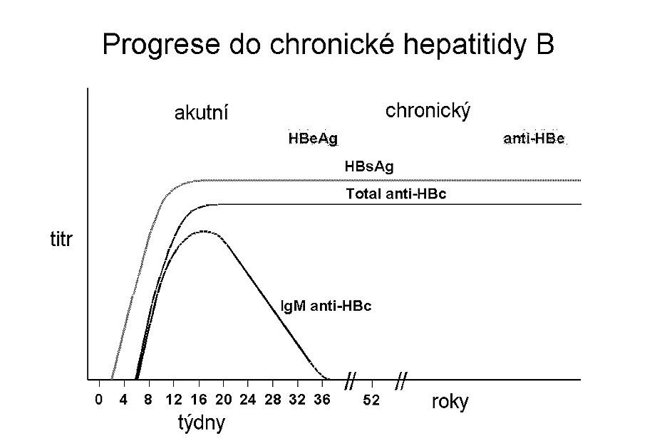 Průběh nálezu v séru při přechodu akutní hepatitidy B do chronicity.
