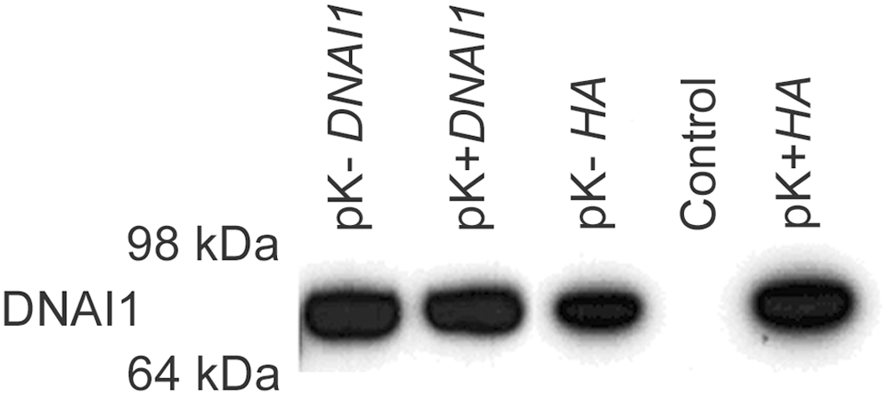 DNAI1 protein detection with the use of DNAI1 anti-dyn69 antibody.