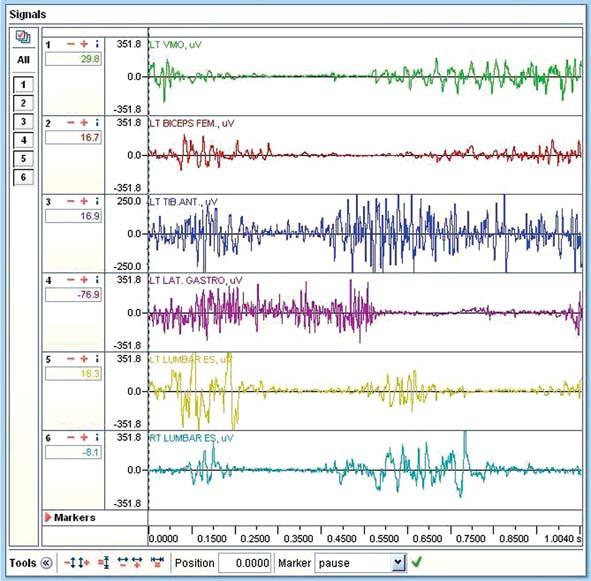 Záznam cyklistického kroku ve vodě. V každém řádku je záznam elektrické aktivity svalu v jednotkách μV.Ve spodní části záznamu je časová osa. Je zachycen cyklistický krok s délkou 1,0040 s. Časové rozmezí mezi jednotlivými kvadranty je přibližně 0,25 s. LT VMO zeleně - m. vastus medialis, LT BICEPS FEM červeně - m. biceps femoris, LT TIB ANT tmavě modře - m. tibialis anterior, LT LAT GASTRO fialově - m. gastrocnemius lateralis, LT LUMBAR ES žlutě - mm. paravertebrales sin., RT LUMBAR ES světle modře - mm. paravertebrales dx.