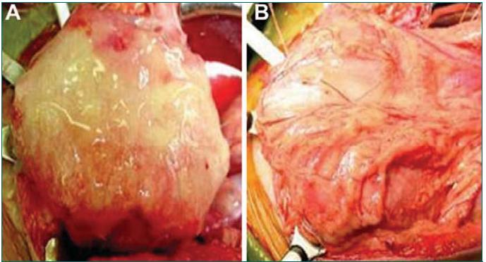 Konstrukce lidského močového měchýře pomocí TE. A. Měchýř je pomocí anastomózy fixován ke tkáni původního močového měchýře (pomocí pokračovací 4-0 polyglykolové sutury). B. Implantovaný měchýř je pokryt vrstvou fibrinového lepidla a omenta.