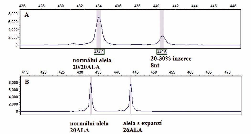Výsledky screeningové mutační fragmentační analýzy upřesněné sekvenční analýzou.