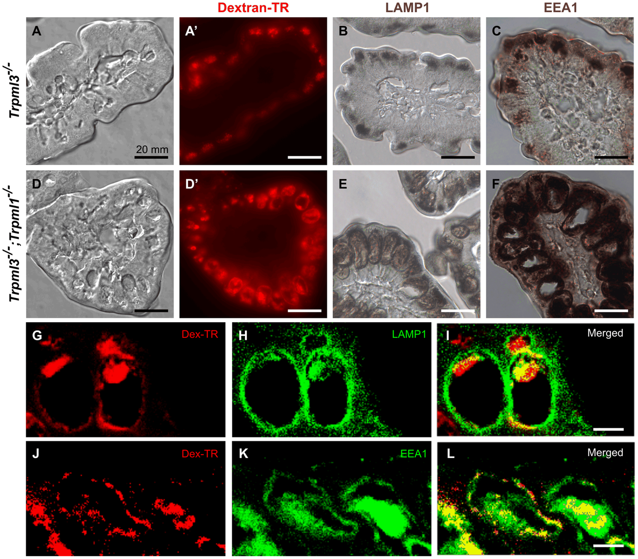 The pathological vacuoles of suckling enterocytes lacking mucolipins 1 and 3 are aberrant hybrid organelles with endosomal and lysosomal components.