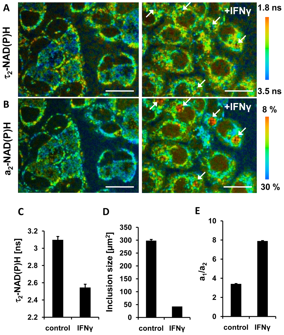 Effects of IFNγ treatment on NAD(P)H inside chlamydial inclusions.