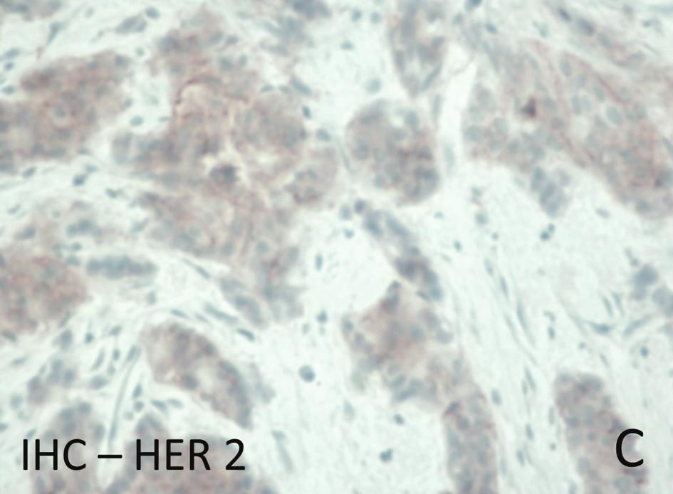 Obr. 1. Následky nesprávné fixace na kvalitu histologického barvení, imunohistochemického vyšetření a in situ hybridizace genu HER 2 u invazivního karcinomu prsu: c) Nehodnotitelný průkaz HER 2 imunohistochemickým vyšetřením v autolyzované tkáni nevhodně fixovaného resekátu – výsledek by mohl být interpretován jako negativní. Fig. 1: Consequences of incorrect formalin fixation on the quality of histological staining, immunohistochemistry and in situ hybridization of the HER2 gene in invasive breast carcinoma: c) HER2 tested with immunohistochemistry in autolysed tissue of an incorrectly fixed tumour resection – HER2 status cannot be established, and the result could be interpreted as false negative.