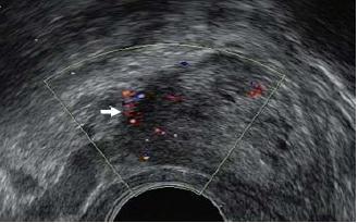 Zvýšený regionální průtok krve (bílá šipka) v důsledku karcinomu prostaty na barevném Dopplerovském ultrazvukovém vyšetření.