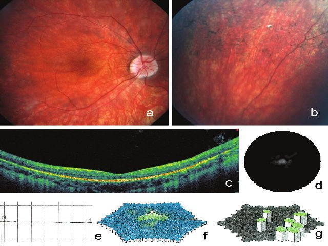 Klinické nálezy zjištěné na pravém oku u 22letého muže (IV:5) s retinitis pigmentosa podmíněnou mutací v ORF15 genu <i>RPGR</i>. Na fotografii fundu je patrné prořídnutí retinálního pigmentového epitelu, zúžené arterie, bledý terč zrakového nervu a) a větší množství shluků pigmentu tvaru kostních buněk b), vertikální SD-OCT makuly dokumentuje sníÏení tloušťky neuroretiny a tenkou cévnatku se zvýrazněním jejích struktur při úbytku RPE c). Koncentrické zúžení zorného pole d), vyhaslá tyčinková odpověď e), snížení hustoty odpovědí na trojrozměrném obraze při multifokální ERG f), zbytkové oblasti elektrické aktivity sítnice představované zelenými šestiúhelníky g)