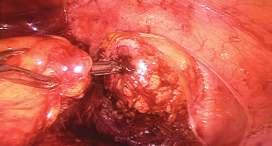 Konstrukce staplerové anastomózy
