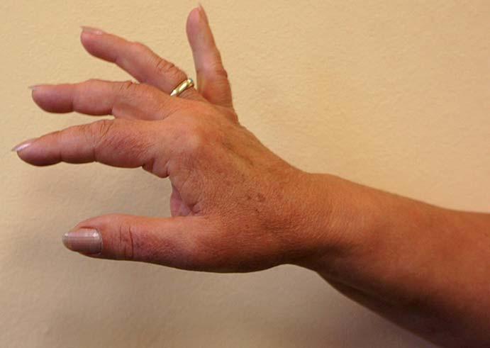 Pacientka 1. Nález 12 měsíců po operaci – extenze zápěstí a MP kloubu IV. a V. prstu M4, u II. a III. prstu na M3 a u palce M2, ve 24 měsících nález stejný.