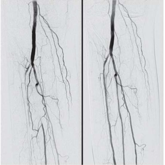 Obr. 3.1. DSA a.poplitea a proximálneho úseku artérií predkolenia