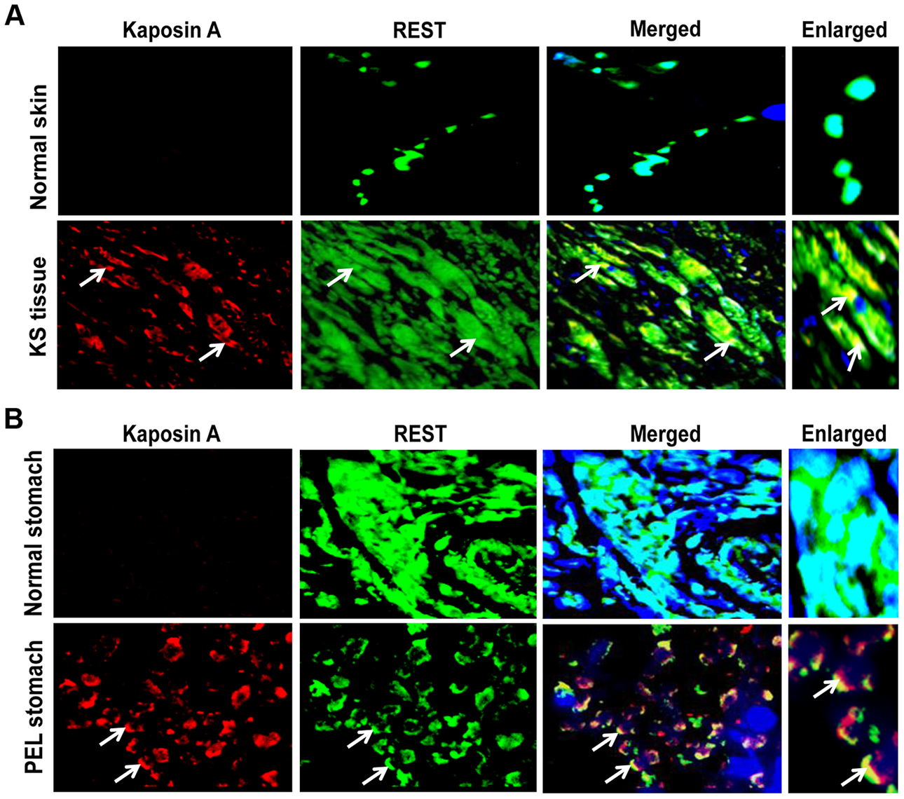 Colocalization of REST and Kaposin in KSHV-infected patient samples.