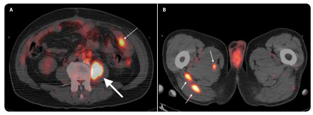 Fig. 1. Axial fused 18-FDG PET / CT image. A – Hypermetabolic metastatic lesion in the psoas major muscle (thick arrow) and a smaller metastatic lesion on the jejunum wall (thin arrow). B – Two hypermetabolic metastatic lesions in the gluteus maximus muscle and in the adductor magnus muscle (thin arrows).