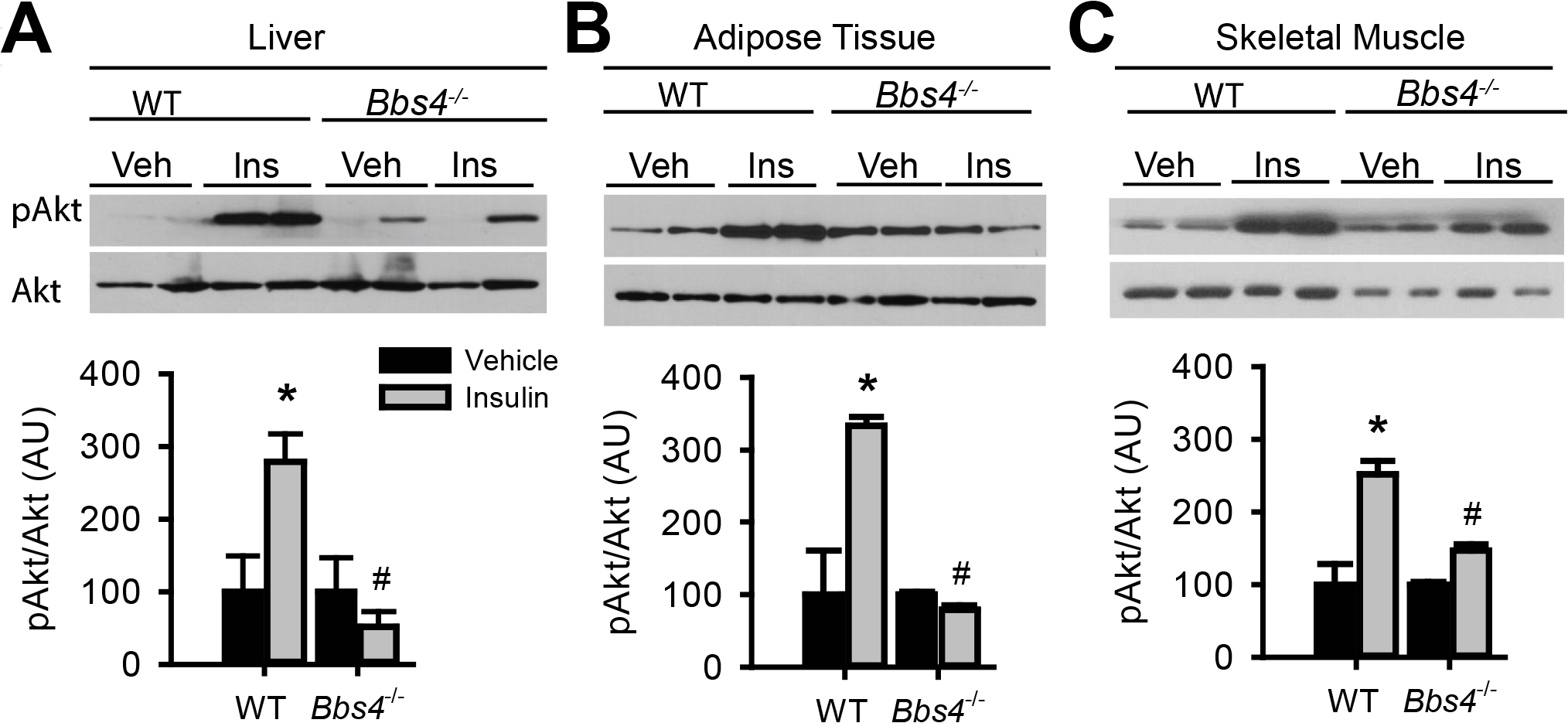 Obese Bbs4 null mice have reduced IR signaling (using phosphorylated Akt at S473 [pAkt] as readout), in liver (A), white adipose tissue (B) and skeletal muscle (C).