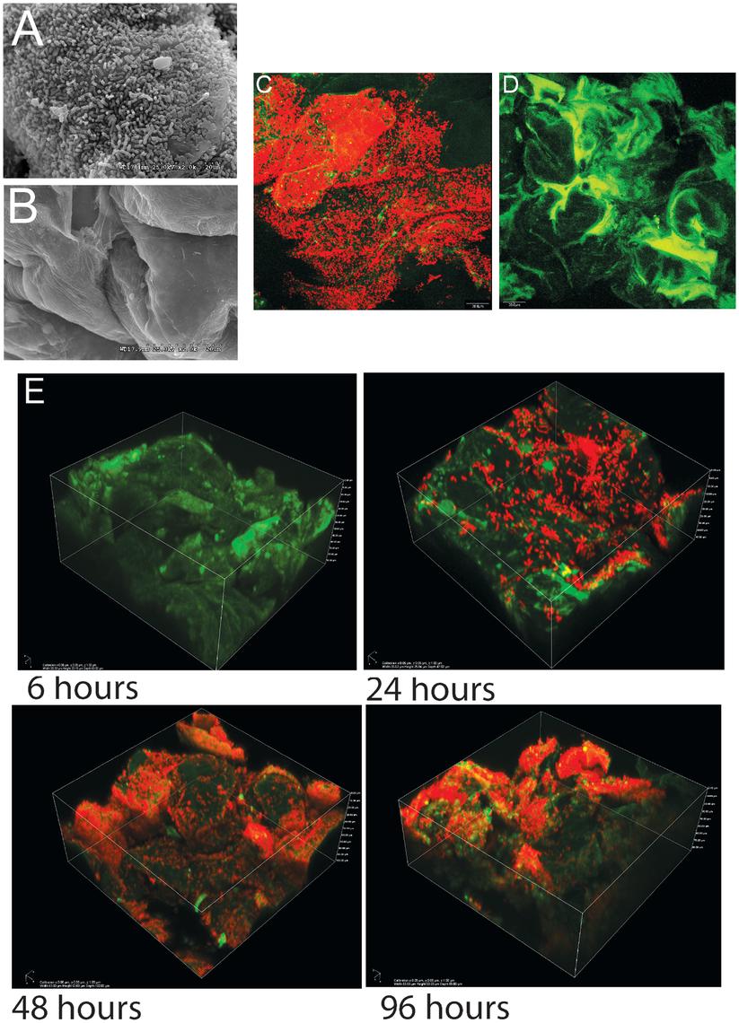 Biofilms of <i>Lactobacillus reuteri</i> 100-23 on the keratinized squamous stratified epithelium of the mouse forestomach.
