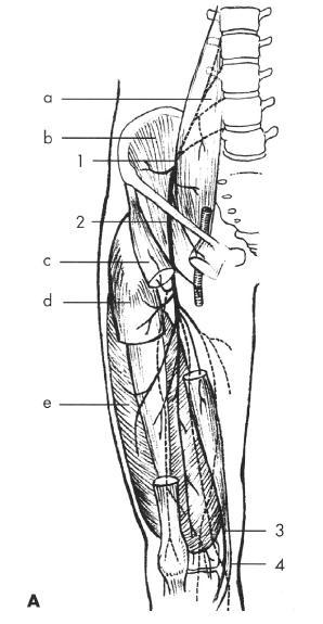 Schéma 3. N. femoralis (kořeny L2-L4) Scheme 3. N. femoralis (L2-L4 roots) <em>Místa komprese nervu: 1 – pod fascií m. psoas major, 2 – v oblasti ligamentum inguinale, 3 – v canalis vastoadductorius (Hunter), 4 – rr. patellares. Svaly: a – m. psoas major, b – m. iliacus, c – m. sartorius, d – m. rectus femoris, e – m. vastus lateralis. Sites of the nerve compression: 1 – under the m. psoas major fascia, 2 – in the ligamentum inguinale region, 3 – within canalis vastoadductorius (Hunter), 4 – rr. patellares. Muscles: a – m. psoas major, b – m. iliacus, c – m. sartorius, d – m. rectus femoris, e – m. vastus lateralis.</em>