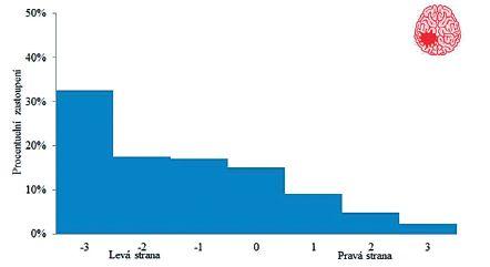 Grafické znázornění stranové preference u probanda po CMP s levostrannou lézí.
