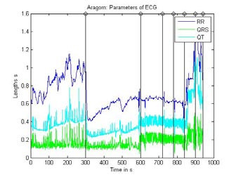 Fig. 1 : Parameters of ECG signal recorded during the stress-test in horses separated by steps.