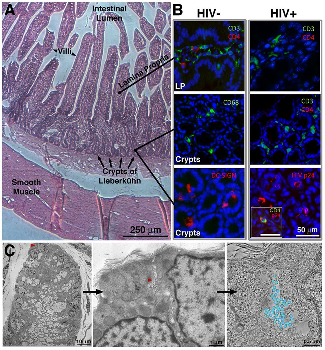 IF and EM imaging of BLT mouse GALT.
