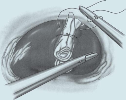 Sutura okrajů ledviny přes celulózovou tkaninu.