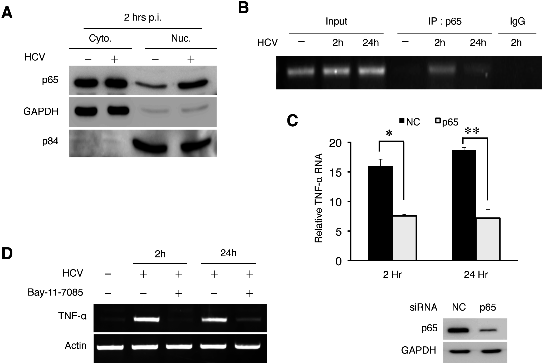 HCV-induced TNF-α by activating NF-κB.