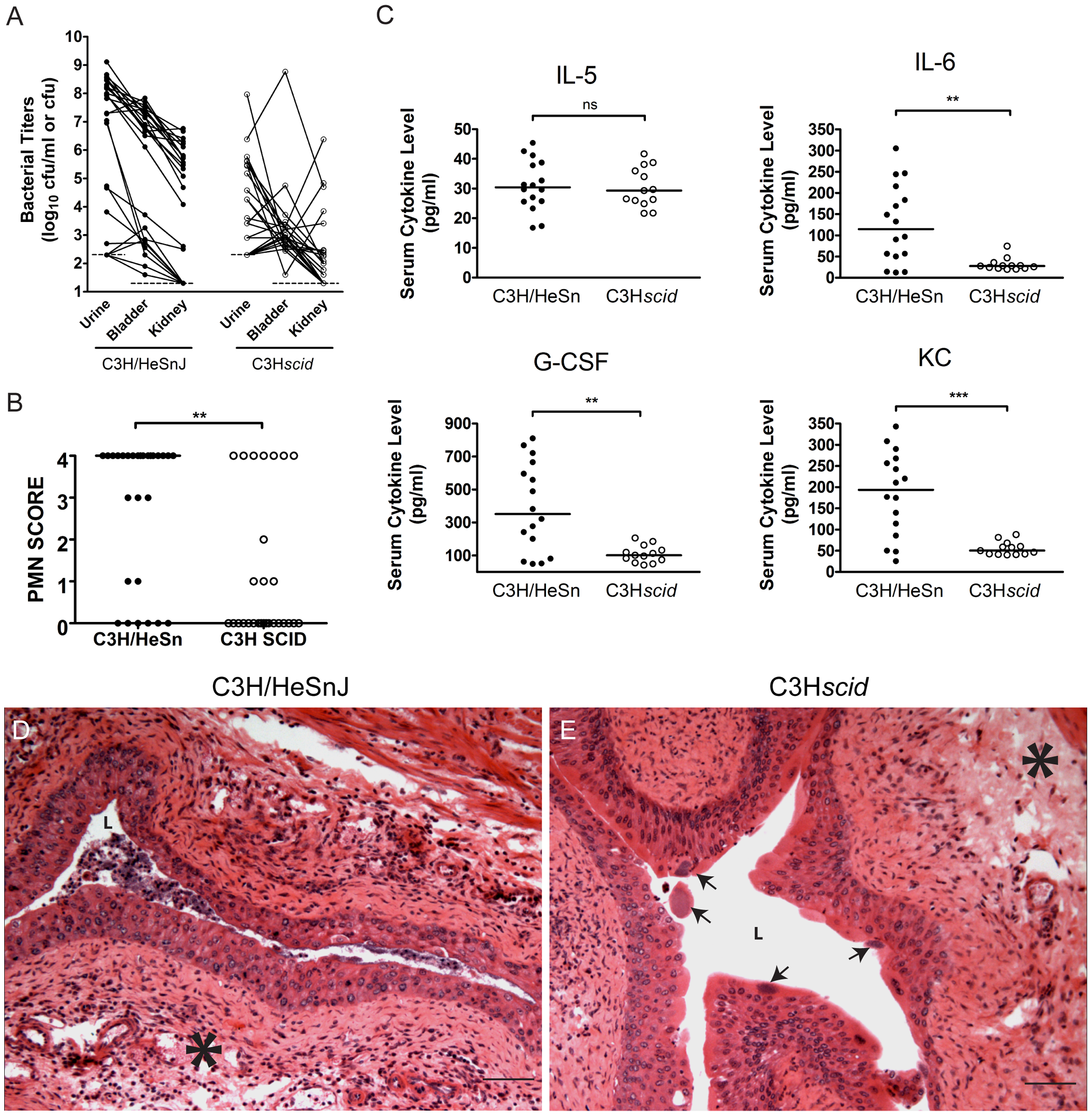 C3H background severe combined immunodeficient mice have muted acute inflammatory responses to UPEC infection and are resistant to chronic cystitis.