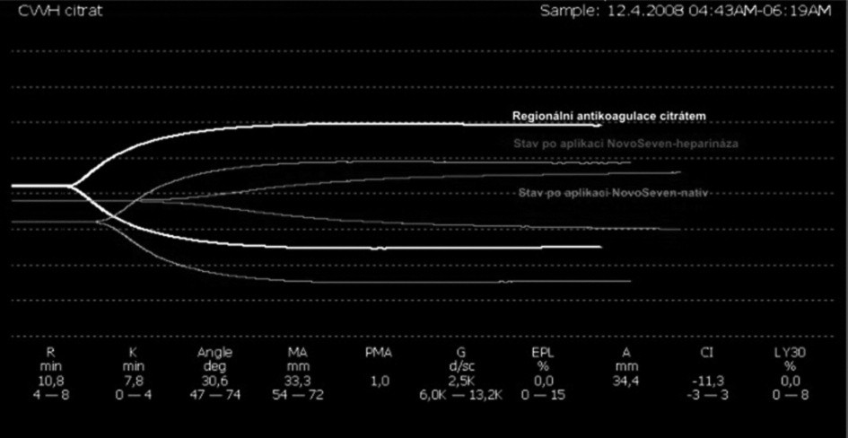 Superpozice tromboelastografií