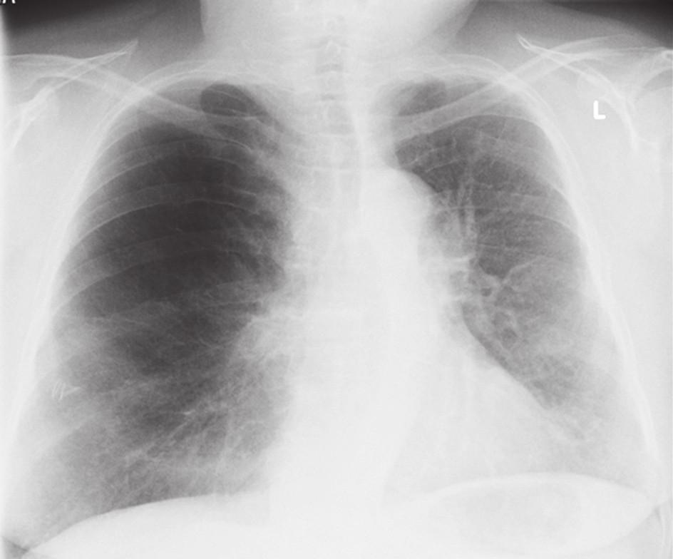 Obr. 1. RTG po primotransplantaci Fig. 1. Chest X-ray after primary transplantation