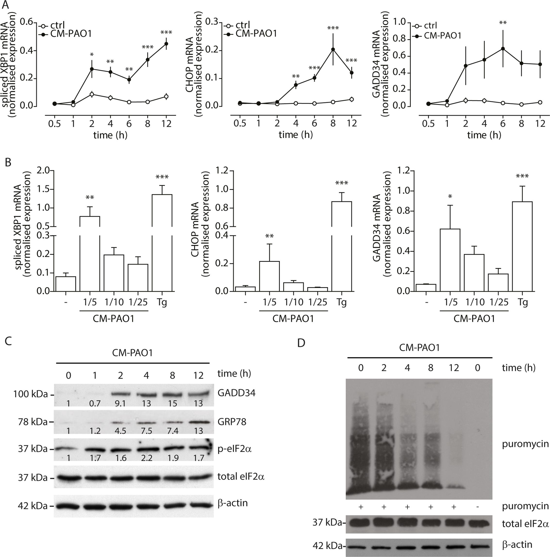 <i>P</i>. <i>aeruginosa</i> secreted virulence factors induce ER stress in primary bronchial epithelial cells.