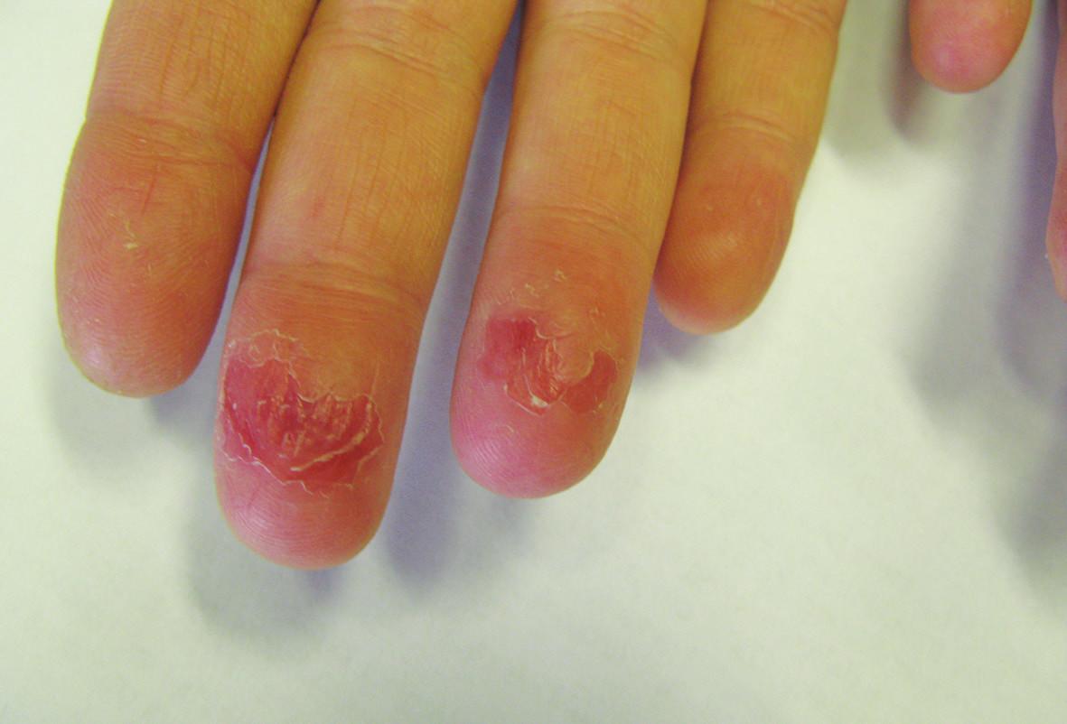 Pulpitida s olupováním a prasklinami při celkové léčbě acitretinem