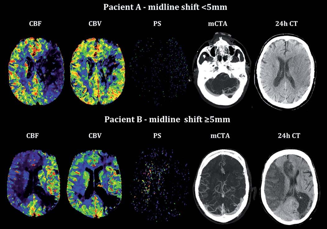 Vstupní analýza CT perfuze, multifázická CTA a kontrolní CT mozku u pacienta bez a s rozvojem posunu středočárových struktur (midline shift). Fig. 2. Admission CT perfusion analysis, multiphase CTA and control brain CT in patient without and with signifi cant midline shift.