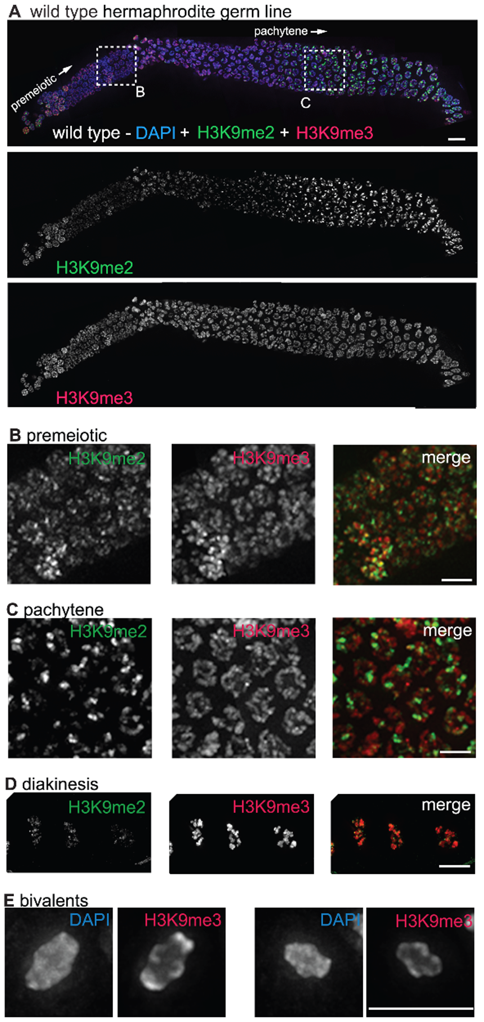 H3K9me2 and H3K9me3 localization in the adult hermaphrodite germ line.