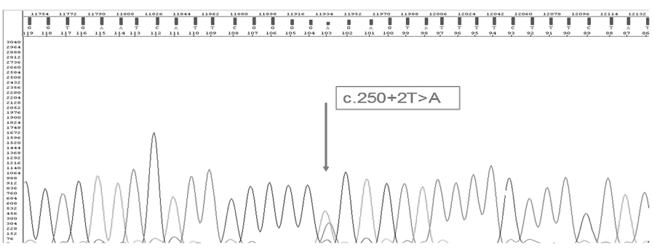 Fig. 5. Sequencing analysis of the intron/exon 24 with point mutation - substitution of the nucleotides (arrow).