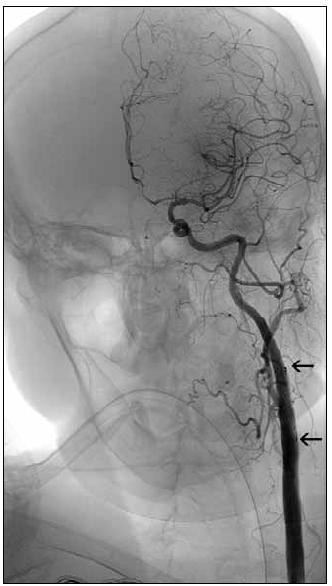 Obr. 5d. Angiografie po léčbě s implantací stentu do oblasti stenózy a. carotis interna (oblast mezi dvěma šipkami) a selektivní trombolýze s vymizením reziduální trombózy a kompletní rekanalizací levé a. carotis communis a jejího povodí.