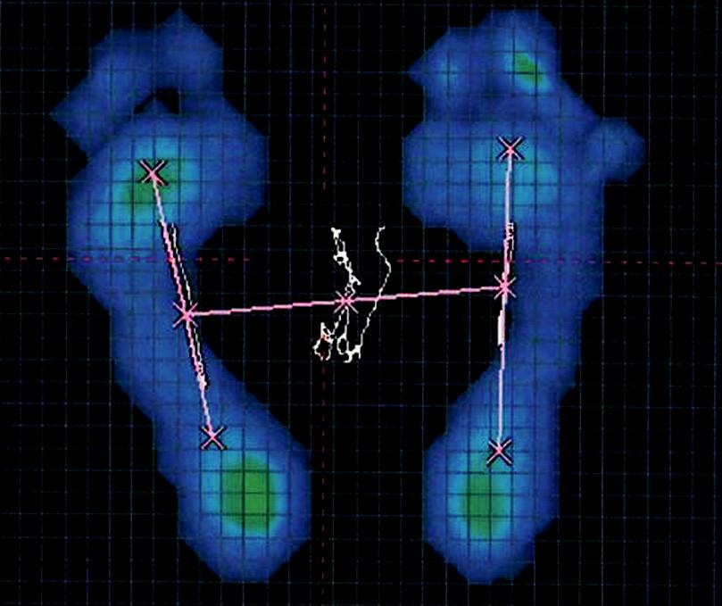Obr. 7b. Hodnocení stoje a chůze u pacienta s aspekčním nálezem ploché nohy pomocí plantogramu (7a), stoje na FDM desce (7b) a chůze na FDM desce (7c).