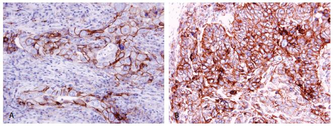 Pozitivita PD-L1 u plicního adenokarcinomu <b>(A)</b> a dlaždicobuněčného karcinomu <b>(B)</b> imunohistochemicky protilátkou klonu 22C3.