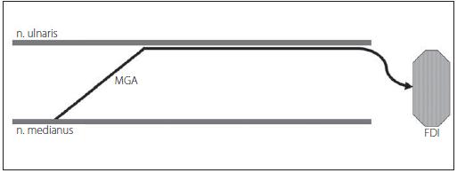 MGA typu II – vlákna n. medianus inervují m. interosseus dorsalis primus (FDI). Fig. 7. MGA type II – fibers of the median nerve innervate m. interosseus dorsalis primus (FDI).
